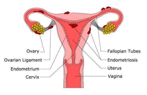 Endometriosis