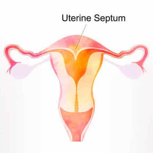 Uterine Septum | Infertility Treatment SMG Women's Health
