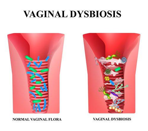 Vagina Dybiosis