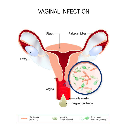 Vaginal Infection